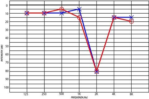 pocket audiometer